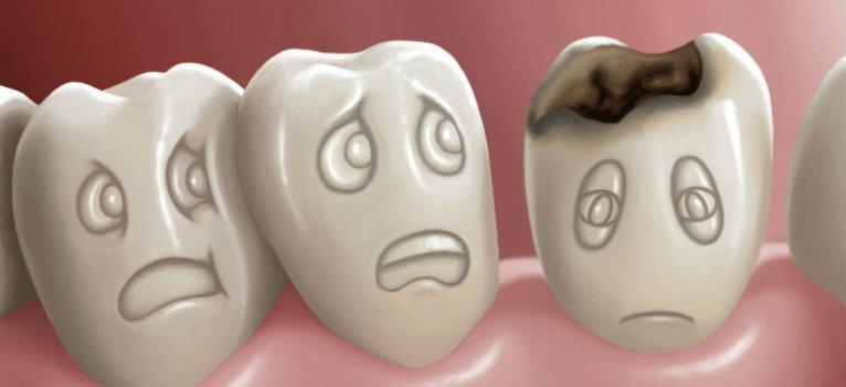 Caria dentara – tratament profilactic